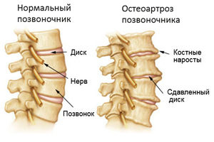 Osteoartroz-pozvonochnika436