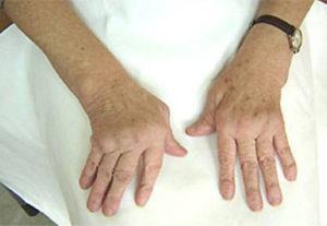 artroz-palcev-2