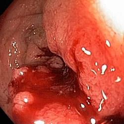 bleeding_rectal_cancer