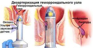 dezarterizaciya