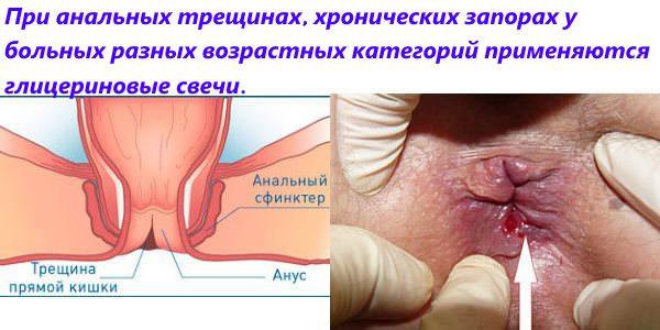 Геморрой анальная трещина лечение