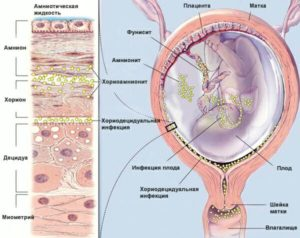 intra_uterin_infection