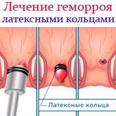lechenie_gemorroja_lateksnymi_kolcami