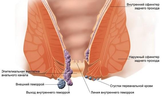 Геморрой лечение беременность