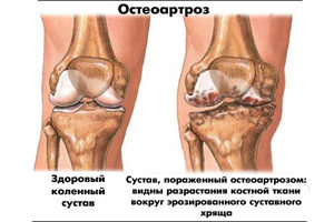prichini-osteoartroza3464