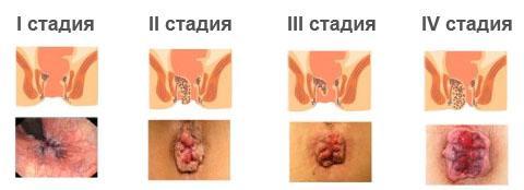 Полип анального отверстия у мужчин