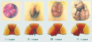 stadii-razvitija-gemorroja-foto