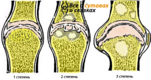 stepeni-osteoartroza