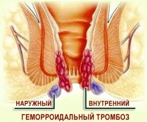tromboz-300x249