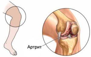 артрит-фото-2