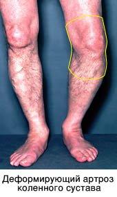 артрроз-колена