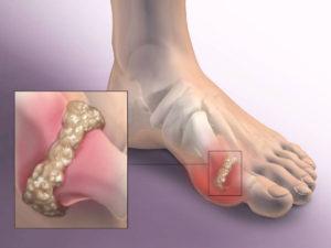 1427393961_sustav-porazhennyy-artrozom
