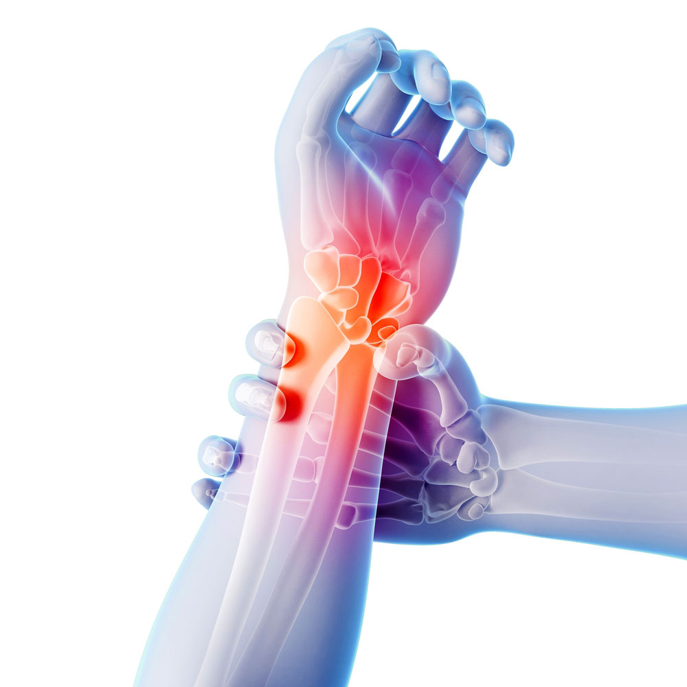 Лечение артроза мелких суставов кистей рук