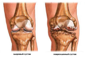 1428401256_normalnyy-i-povrezhdennyy-sustav-kolena
