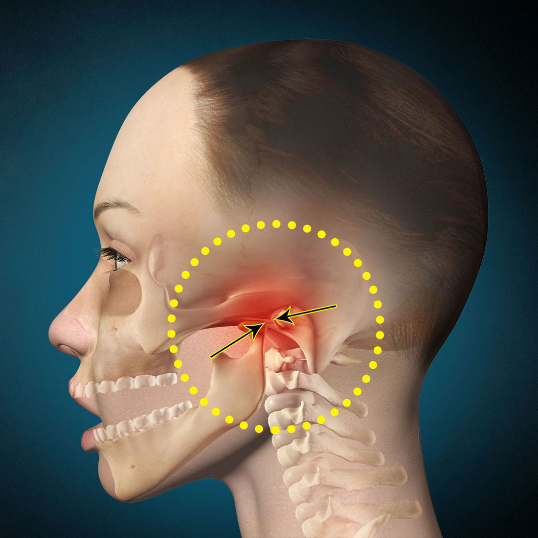 боль в плече и челюсти термобелье никаких