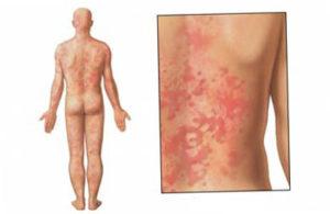 Foto-allergii-na-orekhi