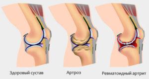 Prichiny-revmatoidnogo-artrita-u-rebenka