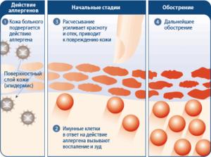 Аллергический дерматит как лечить
