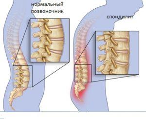 ankilozirujushhij-spondiloartrit