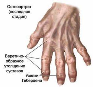 artrit12