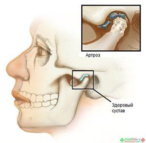 artroz-visochno-nizhnechelyustnogo-sustava