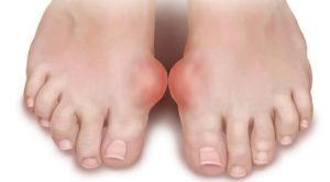 artroza-plyusnevogo-sustava
