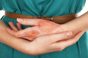 atopi4ni-dermatit