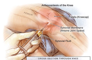 lechenie-artrita-kolena