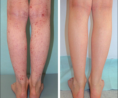 Атопический дерматит на коже как лечить