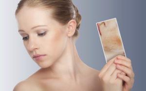lechenie-dermatita-na-lice