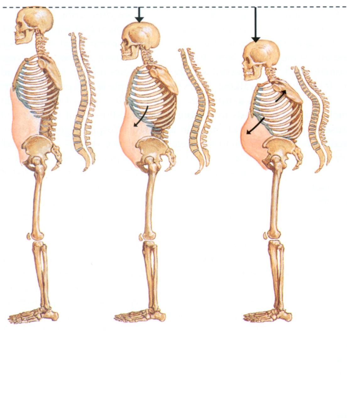 Причины артроза грудного отдела. Диагностика и лечение