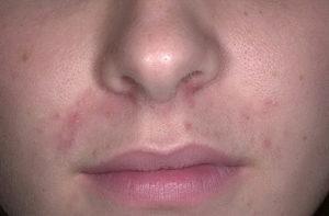 perioralnii-dermatit_77-a-foto