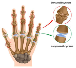 shma-artrita