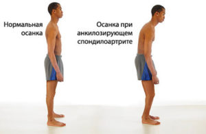 simptomy-bolezni-bextereva