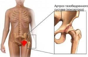 stadii-artroza-tazobedrennogo-sustava
