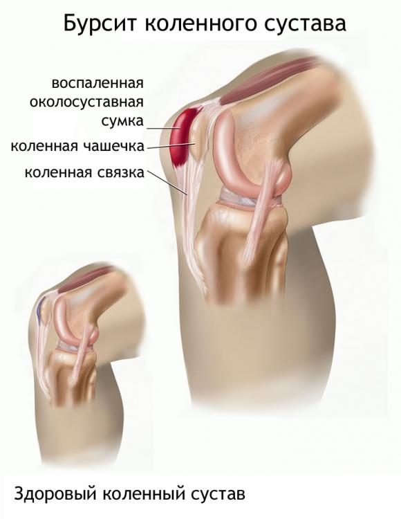 Как лечить бурсит коленного сустава при артрозе