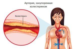 colesterin-500x325