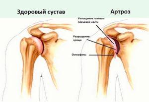 artroz-plechevogo-sustava