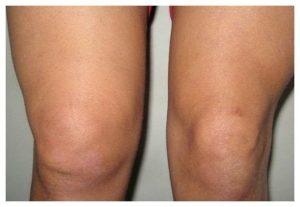 gemartroz-kolennogo-sustava-lechenie-simptomi-1_1