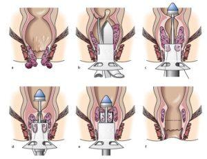 operaciya-po-longo
