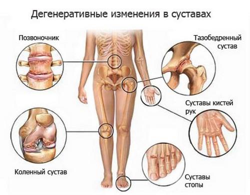 Доа фалангового сустава контрактура сустава пальца