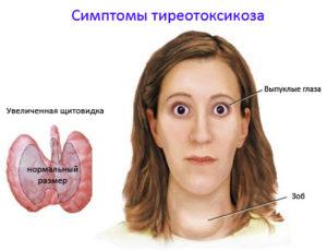 tireotoksikoz-simptomy3