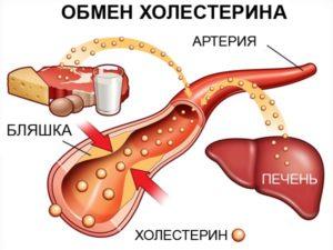 visokiiholesterin
