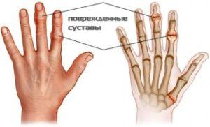 324_1971428430969_lechenie-artrita-sustavov-palcev-ruk