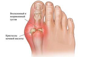 arthritis-toes_artrit-paltsev-nog