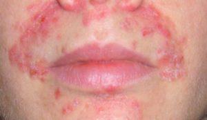 gerpetiformnyj-dermatit-3