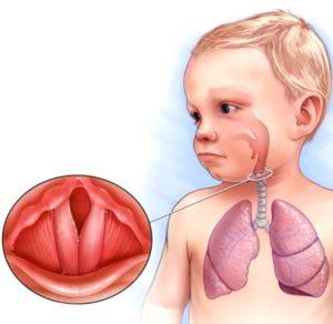 lechenie-laringita-u-detey-printsipyi-terapii-lekarstva-preparatyi_6752