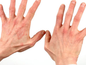 simptomy-allergicheskogo-kontaktnogo-dermatita