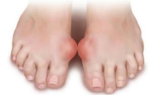 artrit-stopy-simptomy-i-lechenie
