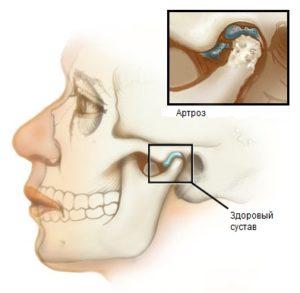 artroz-cheljustnogo-sustava